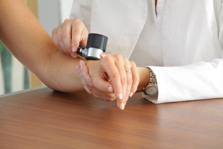 Lekaż badający dłoń pokrytą brodawkami płaskimi.
