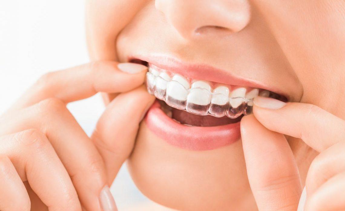 Kobieta nakłada na zęby nakładkę osłaniającą szkliwo przeciwko zgrzytającym zębom