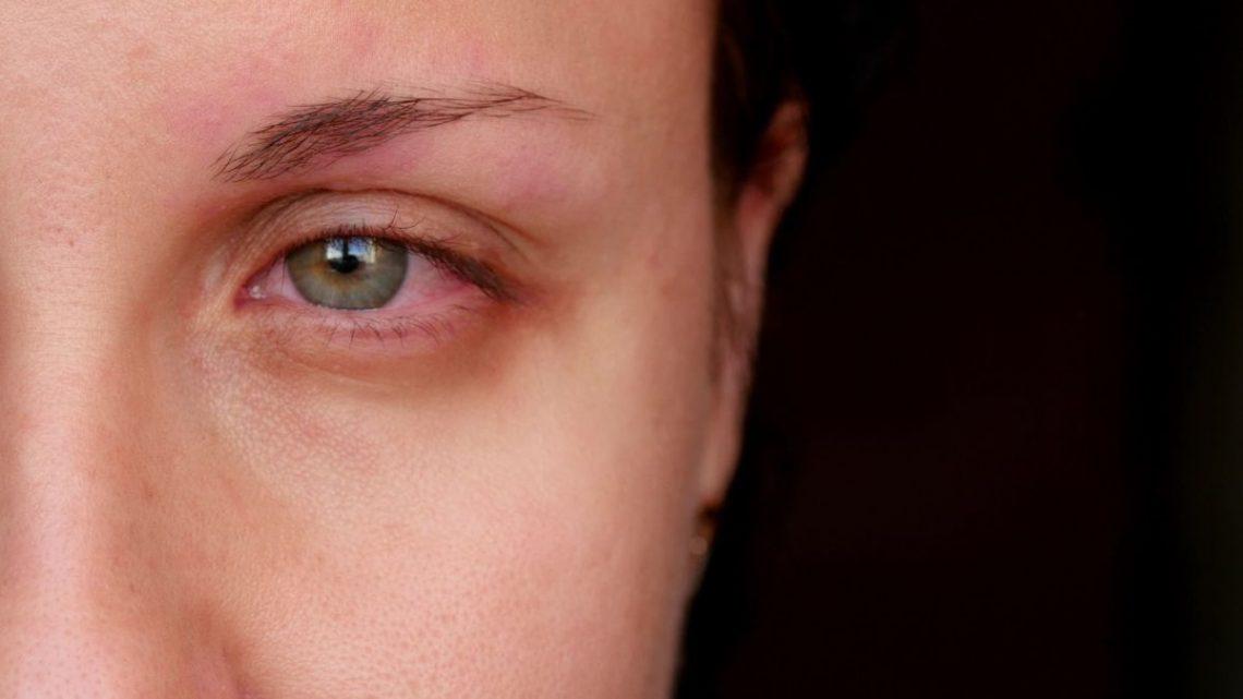 Pół twarzy kobiety, która ma chore oczy