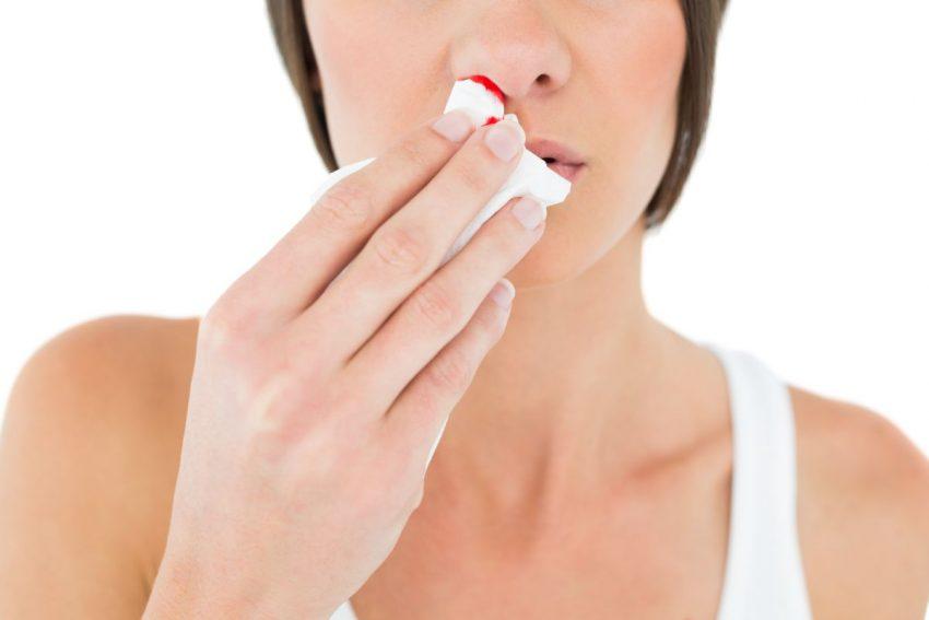 Kobieta w białej bluzce przytyrzymuje chusteczkę przy nosie, ponieważ ma krwotok