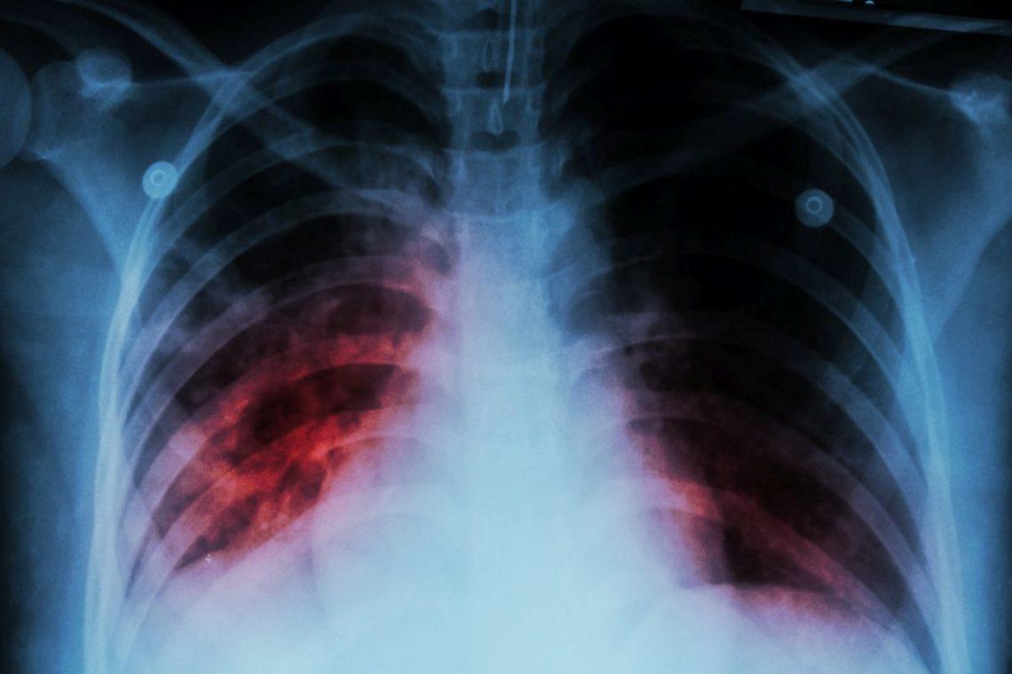 Zdjęcie rentgenowskie przedstawiające chorobę