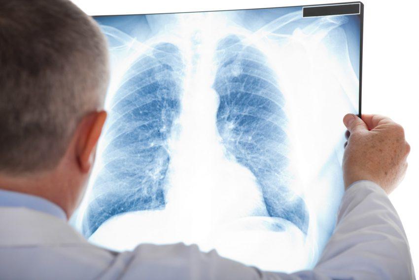 lekarz trzymający zdjęcie rentgen