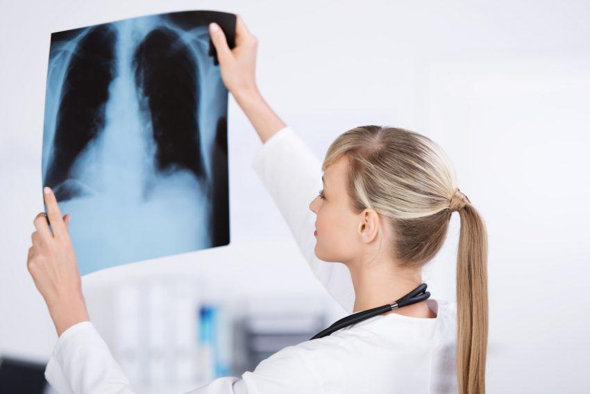 Lekarka ogląda zdjęcie roentgenowskie płuc.