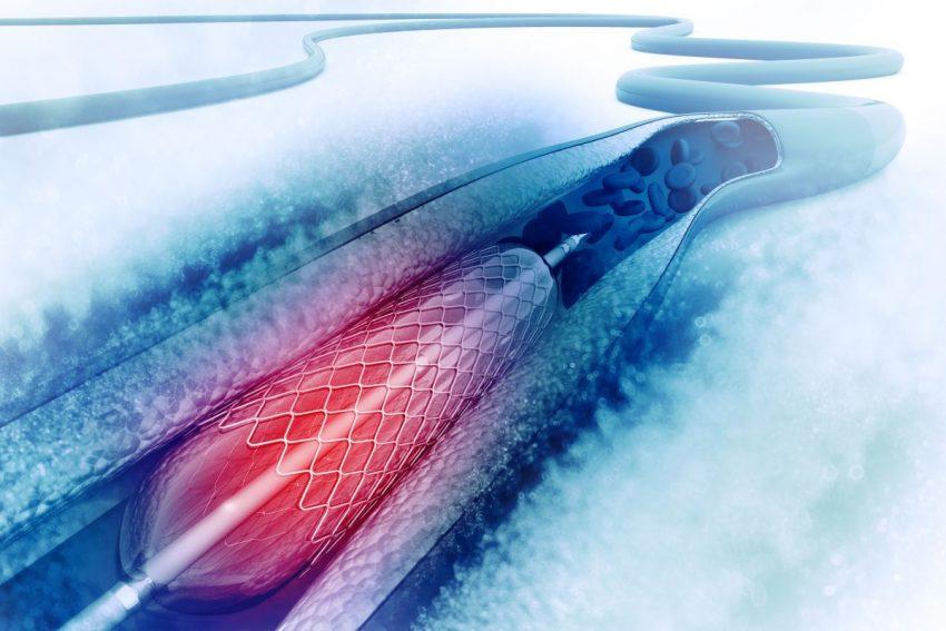 angioplastyka balonowa w poszerzaniu naczyń krwionośnych