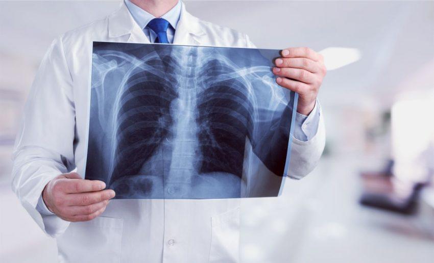 Lekarz trzyma w ręku rentgen płuc