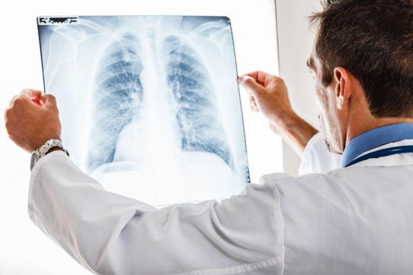Lekarz ogląda pod światło zdjęcie rentgenowskie płuc