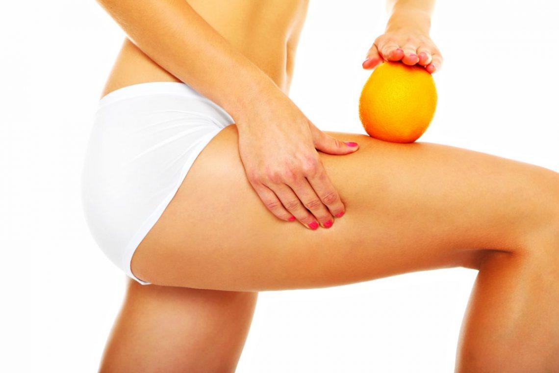 kobieta jedną ręką ściskająca skórę na udzie trzymając w drugiej dłoni owoc pomarańczy