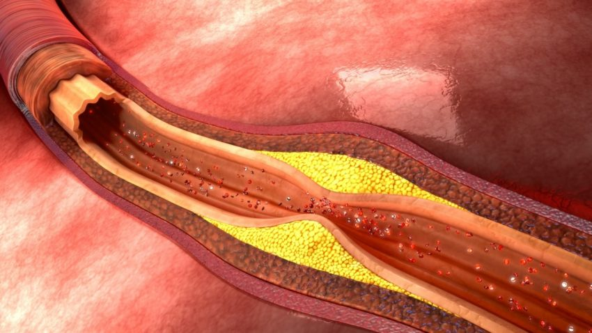 cholesterol w 3D