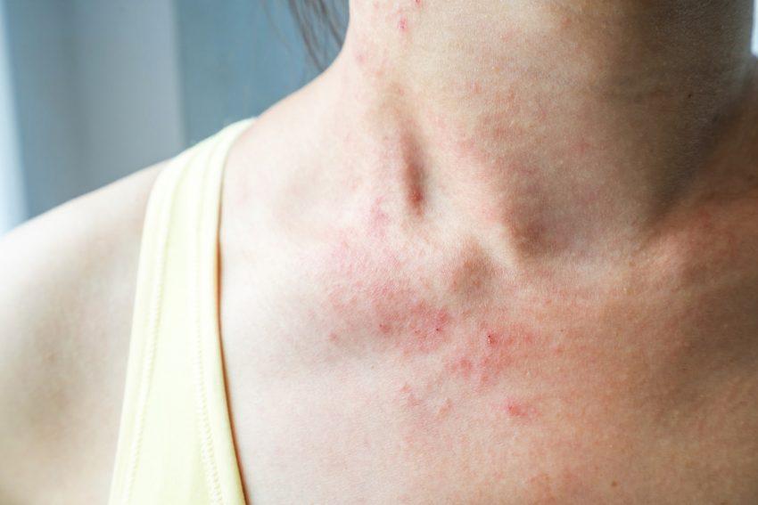 problemy skórne na szyi