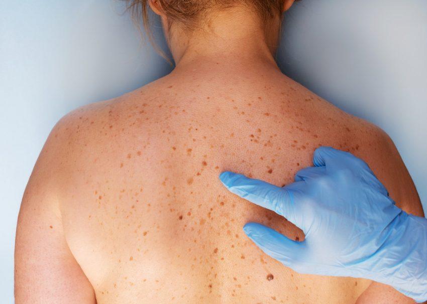 problemy skórne pleców