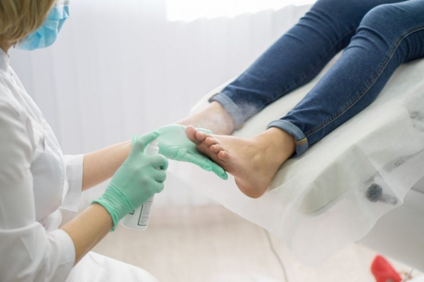 lekarz w rękawiczkach i maseczce jednorazowej spryskuje preparat przeciwgrzybiczy na stopy pacjentki