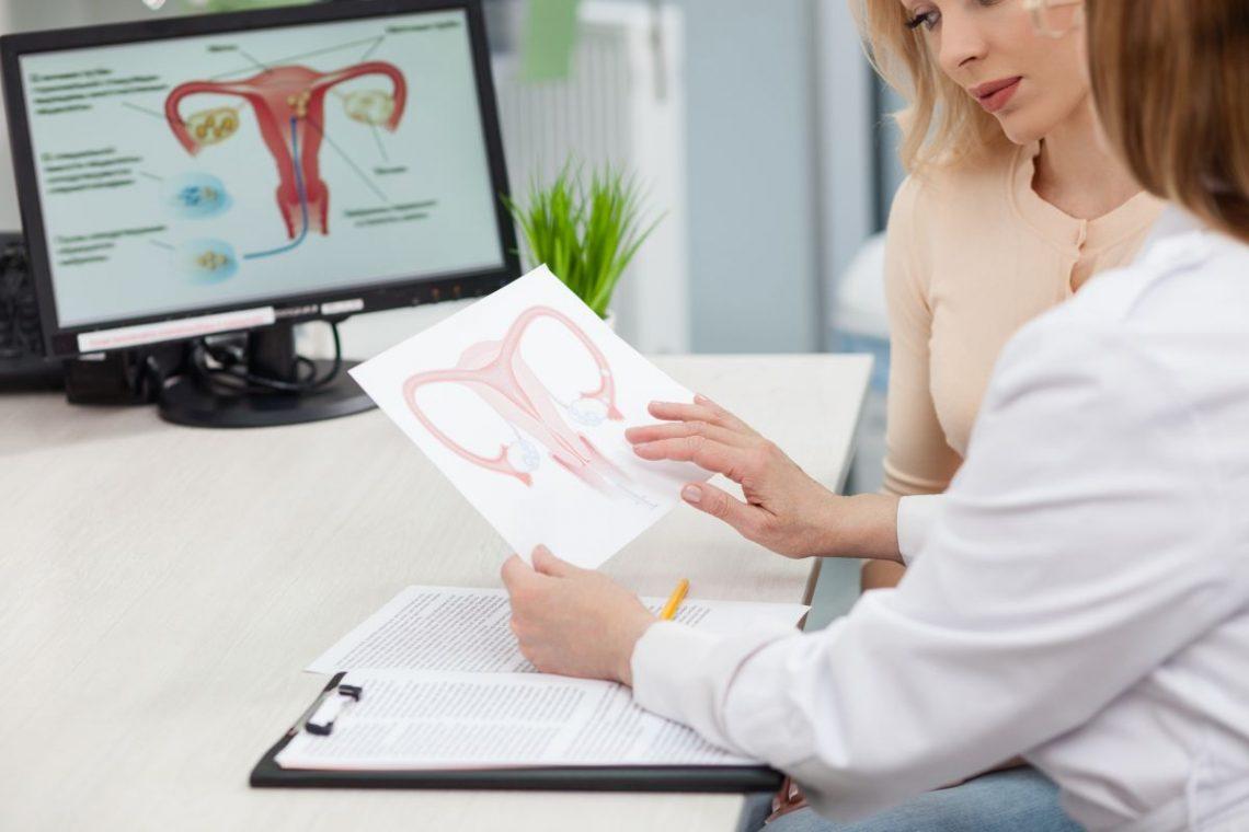 Łyżeczkowanie macicy Lekarka pokazuje pacjentce schemat kanału rodnego kobiety
