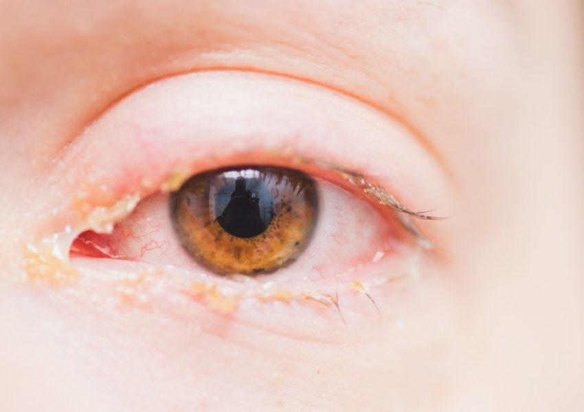 Ropiejące oczy kobiety