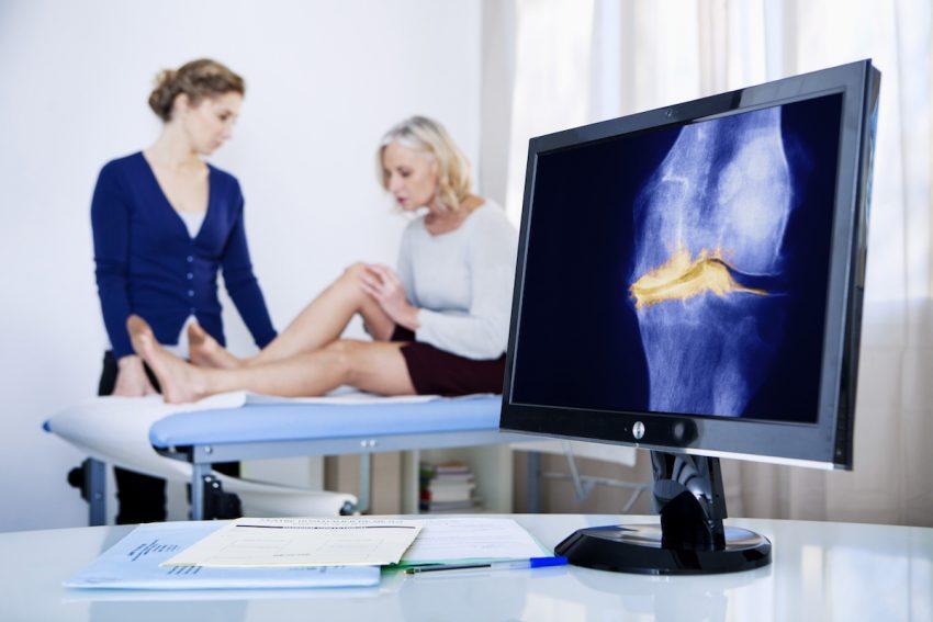Kobieta z wodą w kolanie podczas konsultacji lekarskiej.