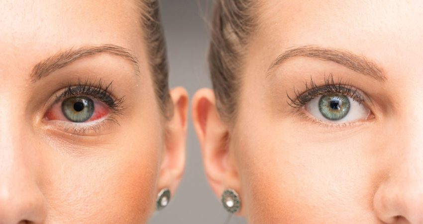 jedno zdrowe oko kobiety i drugie z zapaleniem rogówki