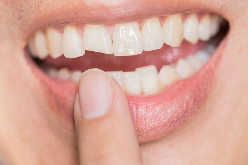 Zęby wymagające bondingu