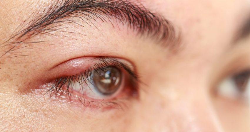 oczy kobiety z gradówką