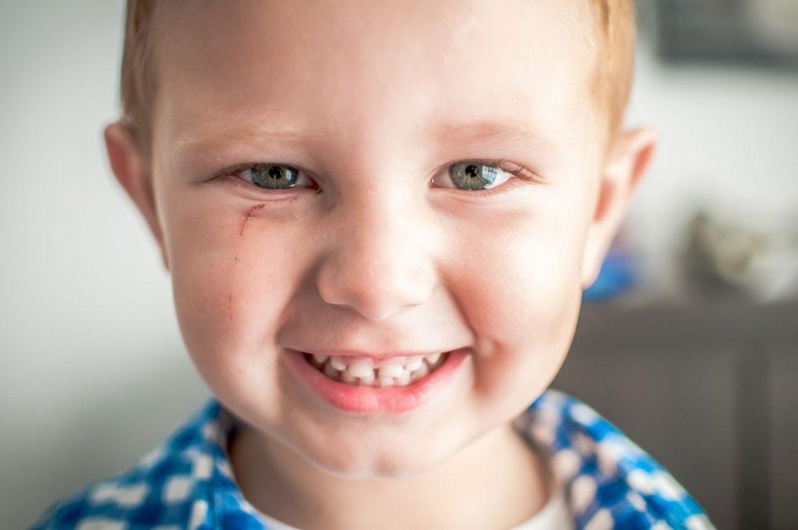Chłopiec u którego wymagane jest lapisowanie zębów mlecznych