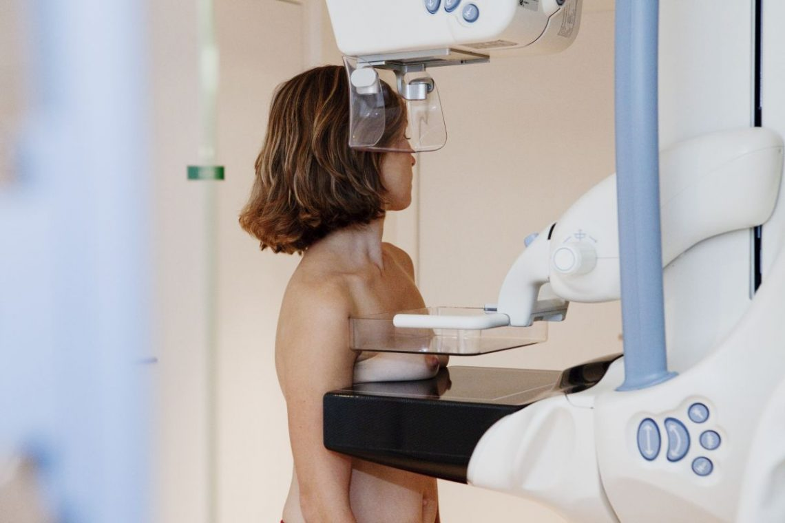 Kobieta na badaniu piersi metodą mammografii