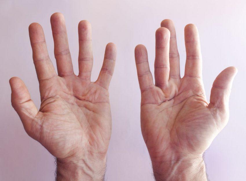 dłonie osoby cierpiącej na przykurcz Dupuytrena
