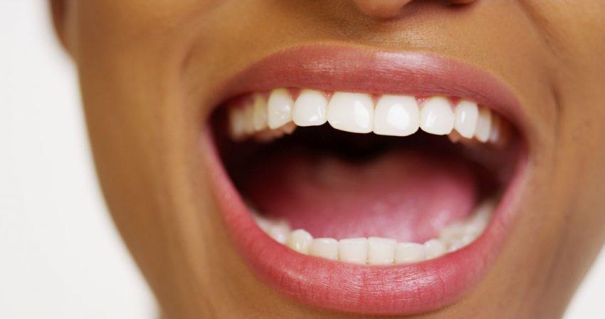 kobieta cierpiąca na leukoplakię otwiera usta