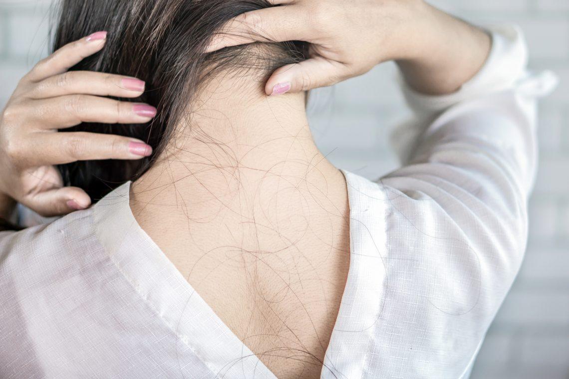 Wypadanie włosów / istockphoto.com