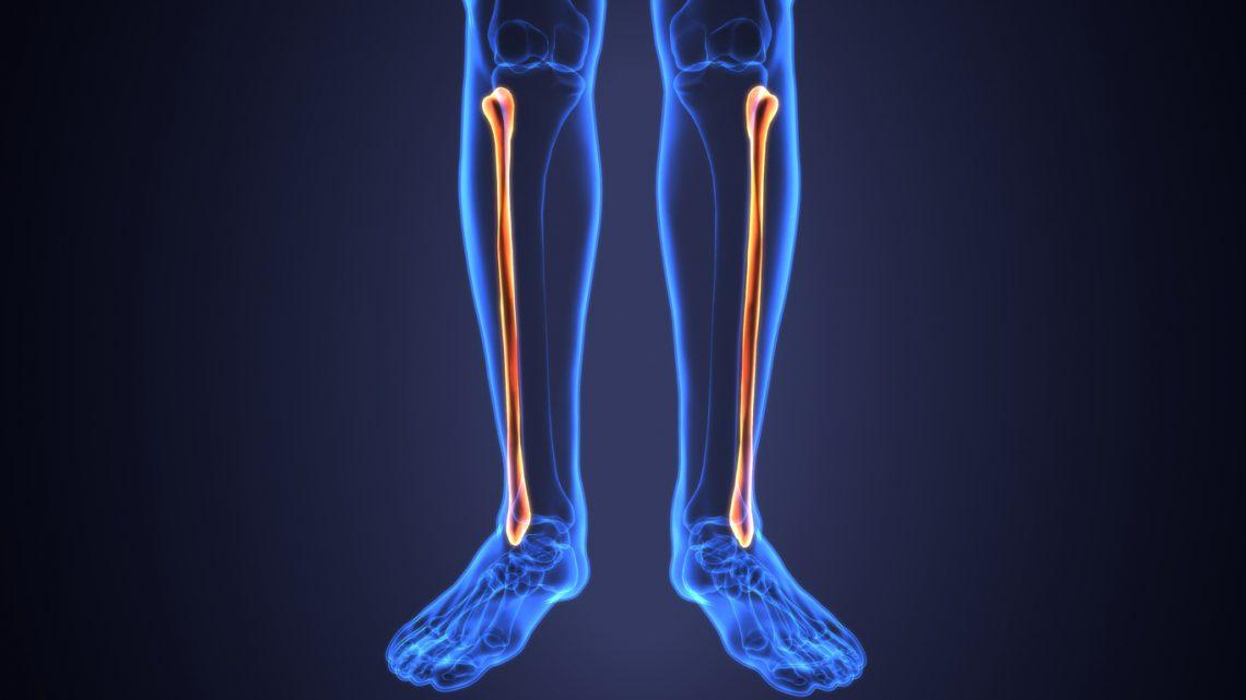 Uszkodzenia kości strzałkowej. Co warto wiedzieć?