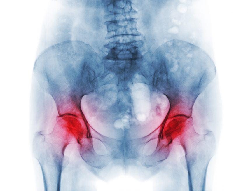 Osteopenia - jakie daje objawy i jak się ją leczy?