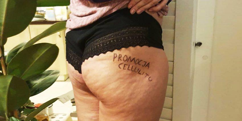 Kaya Szulczewska ogłasza promocję cellulitu