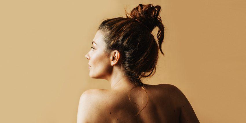 Znamiona skórne u kobiety / istockphoto.com