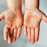 bostonka na dłoniach dziecka